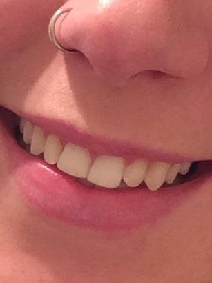 before-teeth