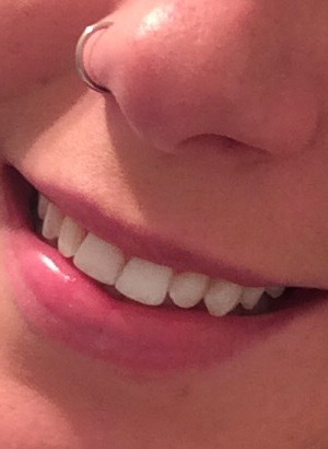 teeth-after